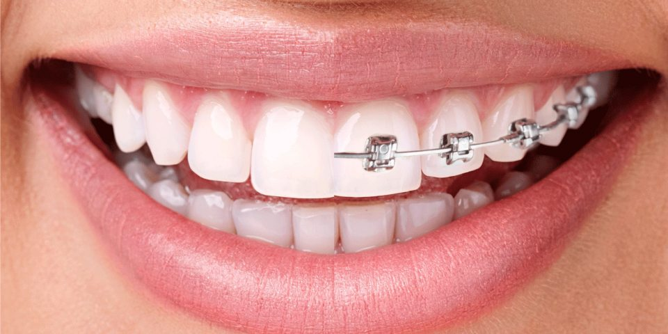 When Is The Right Time To Look For Braces Treatment?