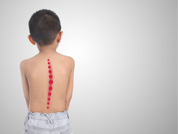 How To Reduce The Back Pain Of Your Children?