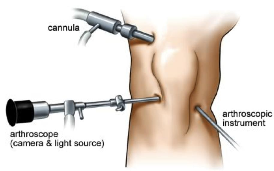 Treat Your Fractured Knee With The Arthroscopy Surgery, Check How?